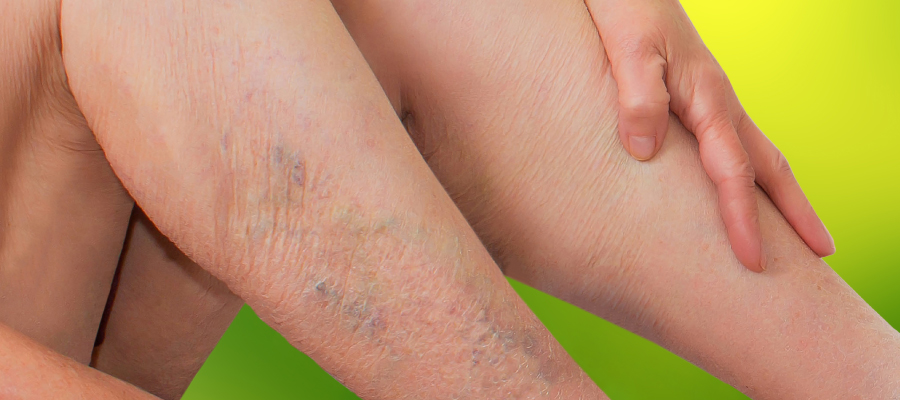 Muito além da questão estética: varizes são um problema de saúde e têm tratamento
