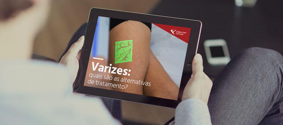 Varizes: Quais são as alternativas de tratamento?