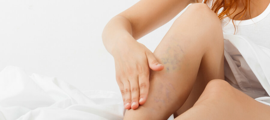 Saiba reconhecer os sintomas de trombose na perna