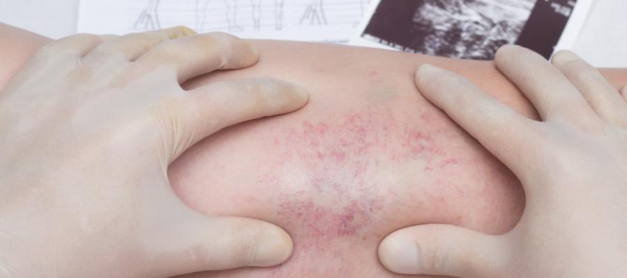 Exames vasculares causam dor?