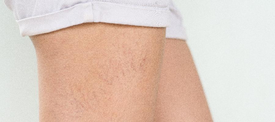 Vasinhos nas pernas: conheça os tratamentos disponíveis para resolver este problema
