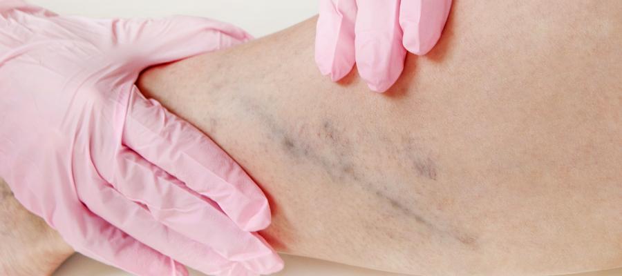 Dúvidas frequentes sobre a microcirurgia de varizes