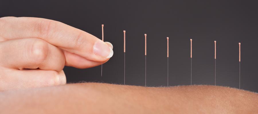 Benefícios da acupuntura para a sua vida